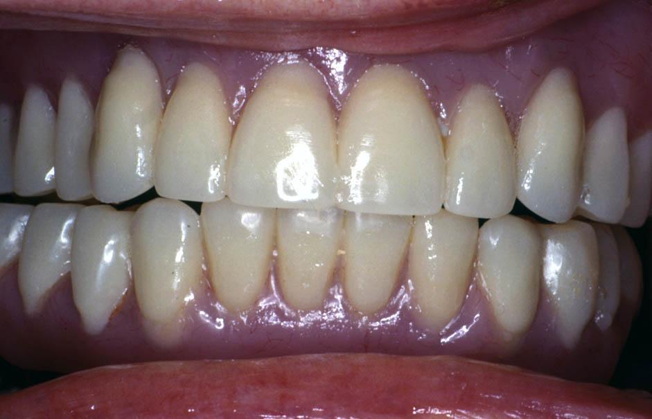 Denture(10)after