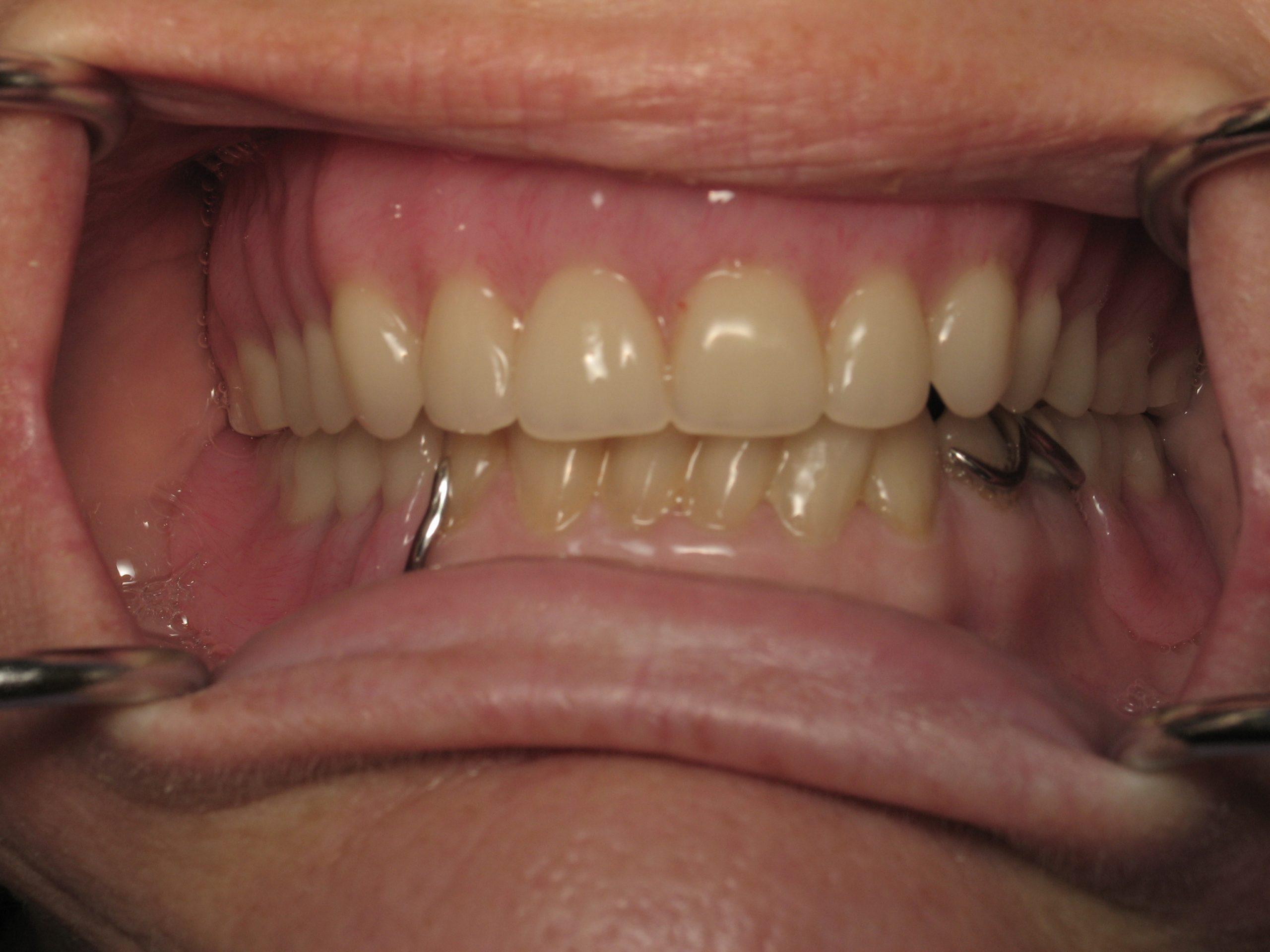 Denture(35)after