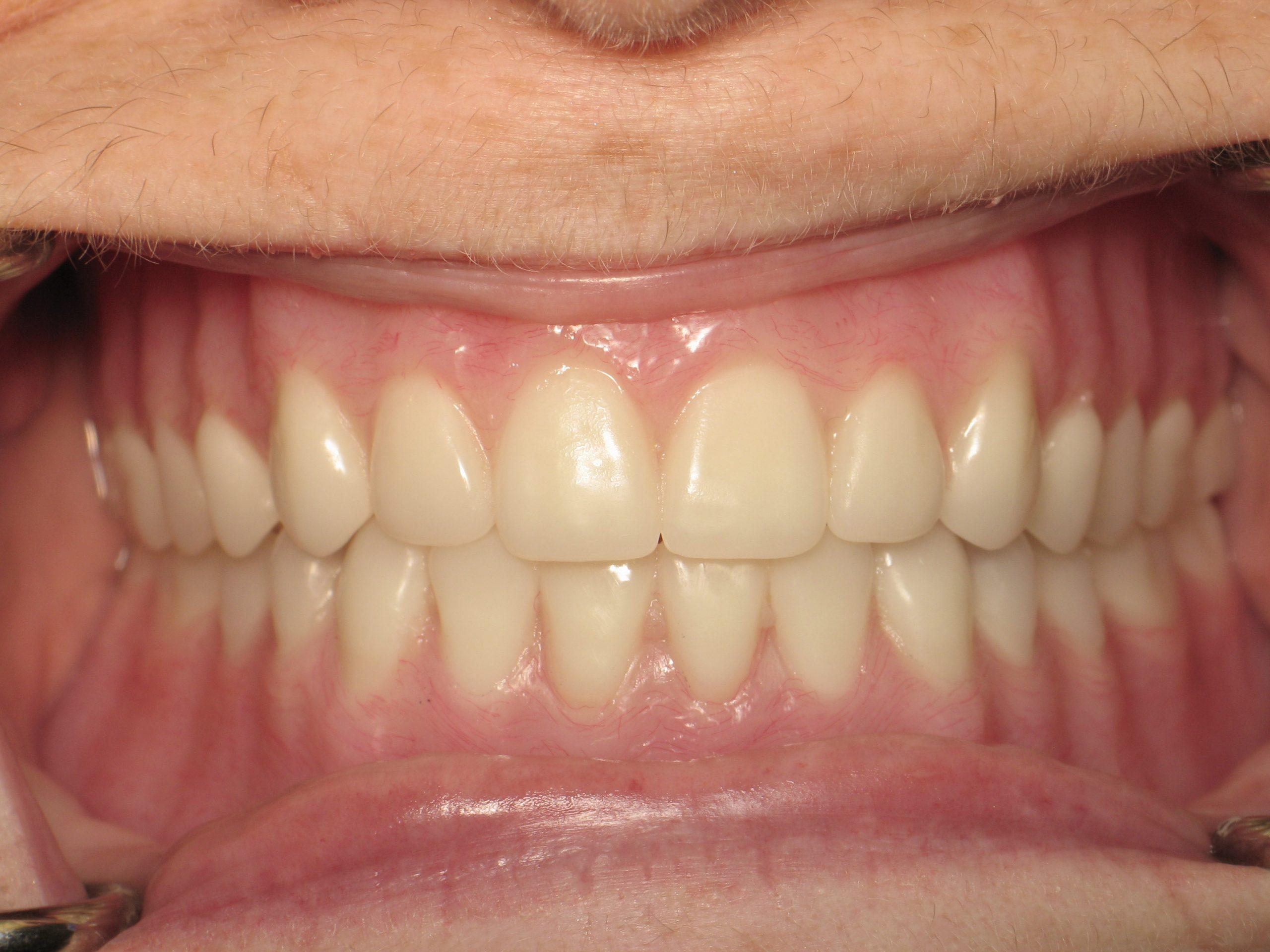 Dentures(23)after