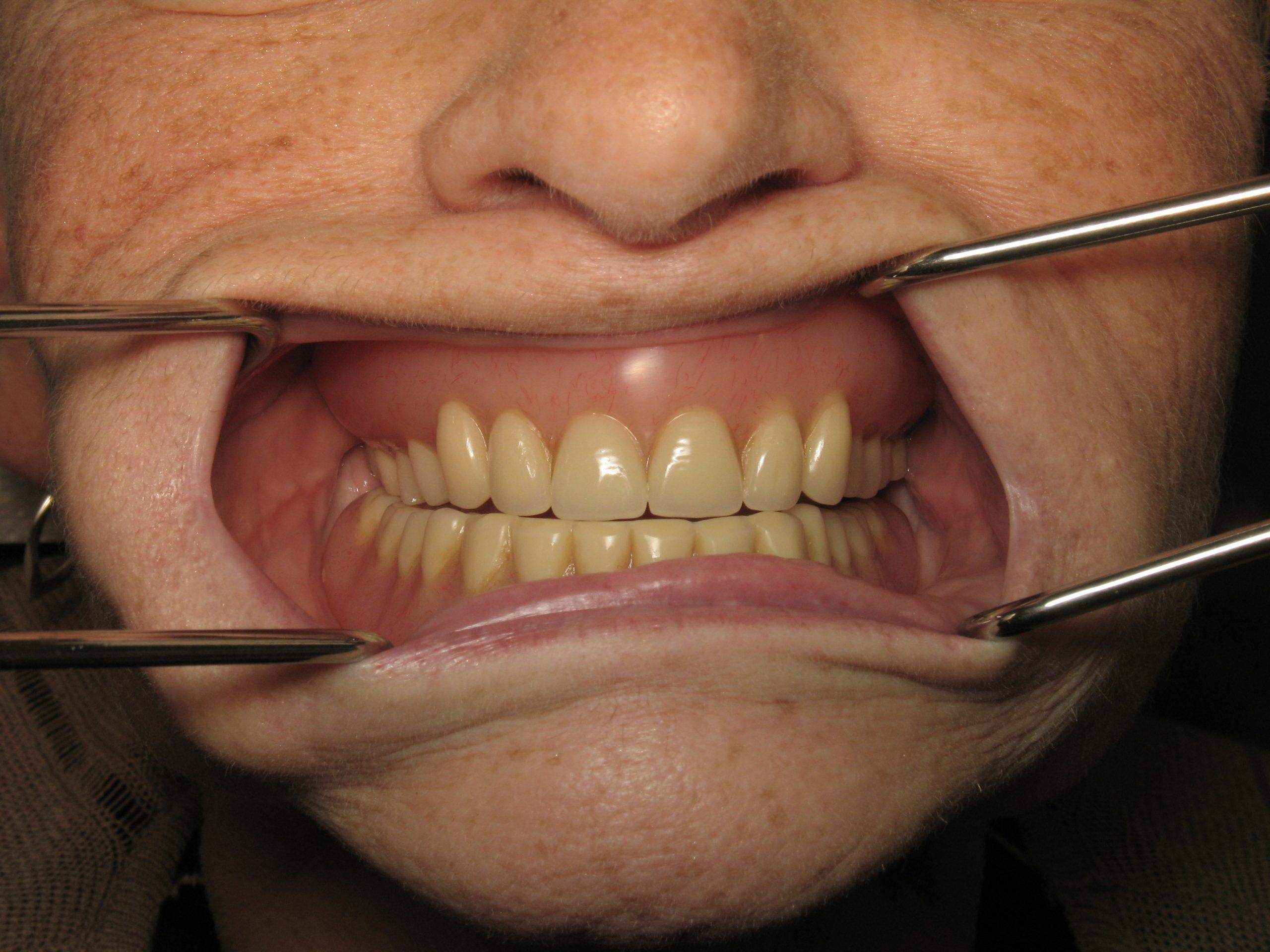 Dentures(23)before