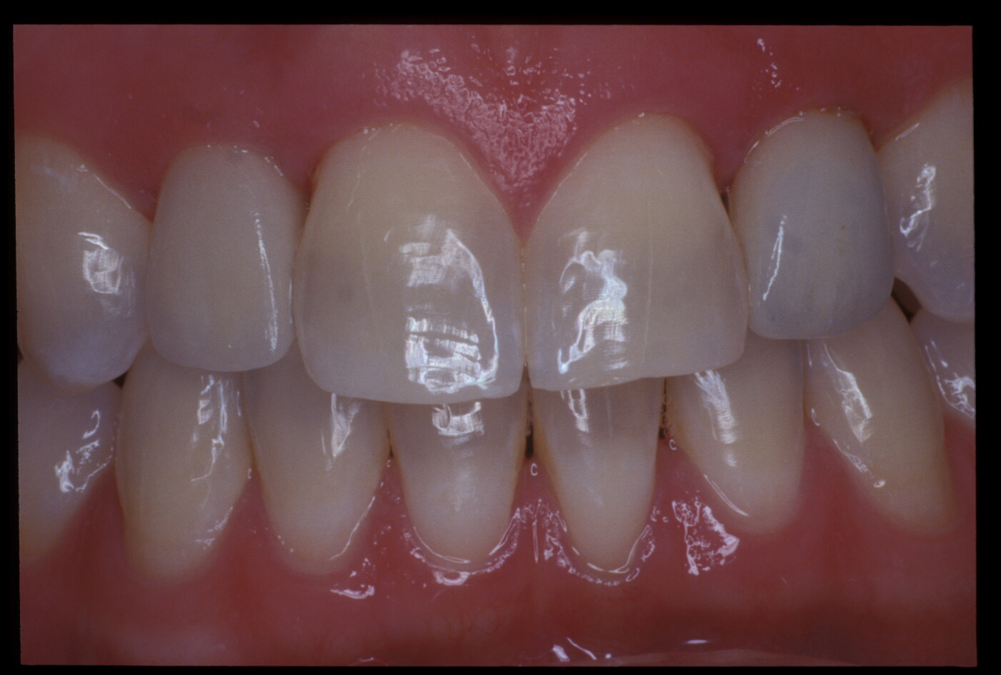Implant(14)after