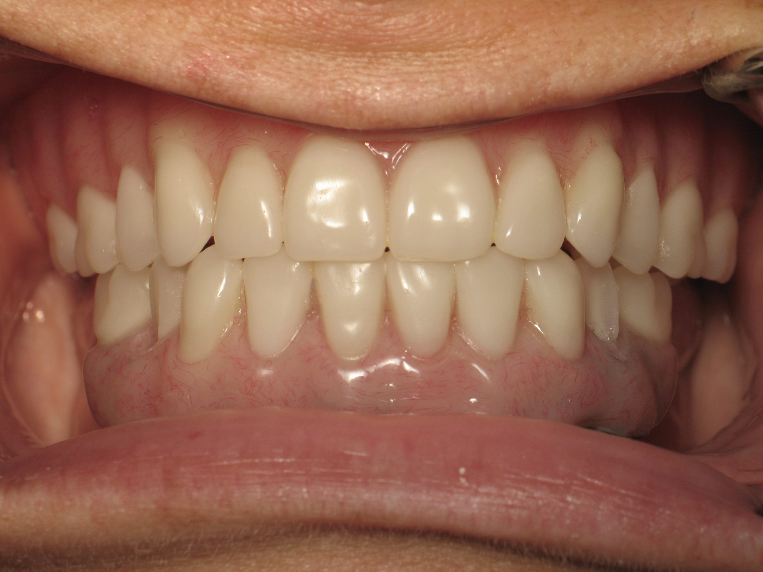 Implantdenture(31)after