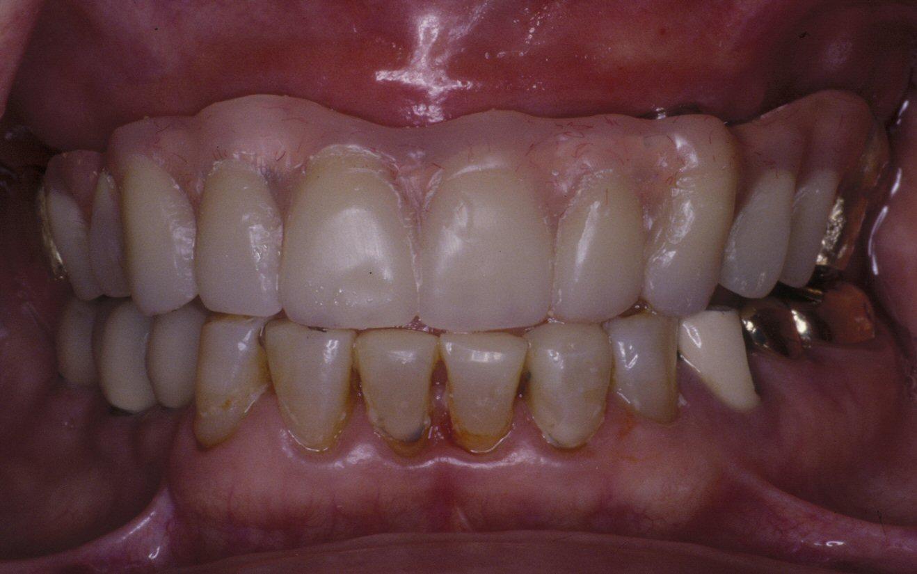 Implantdenture(34)after