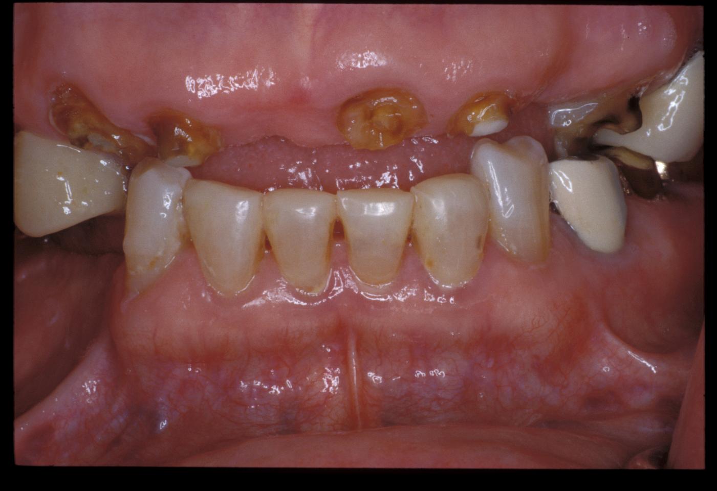 Implantdenture(34)before