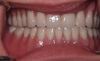 Dentures1a