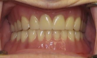 Dentures2a