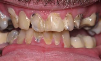 Inplantdenture1